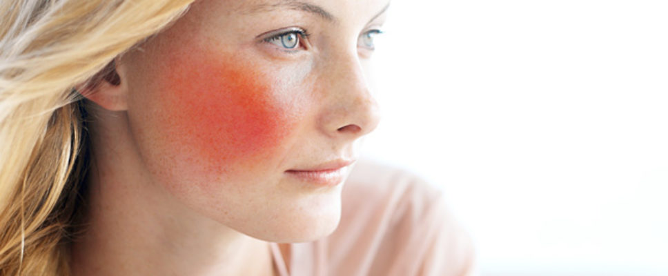 Czym leczyć trądzik różowaty?